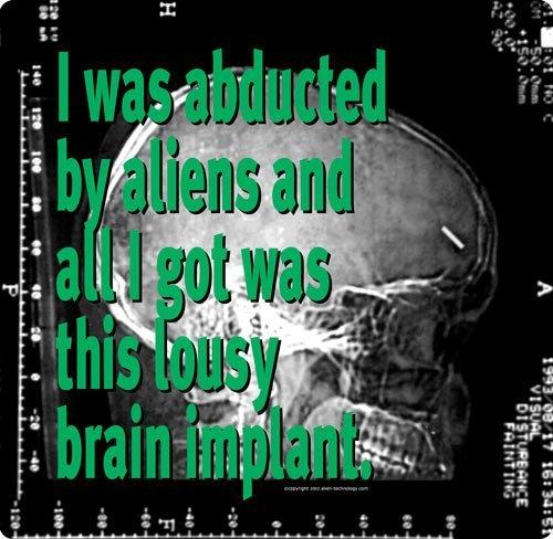 brain implant X-ray